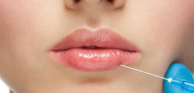 Lippen aufspritzen lassen – volle Lippen für ein strahlendes Lächeln